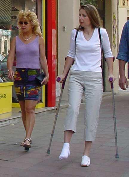 В чем ходить с загипсованной ногой